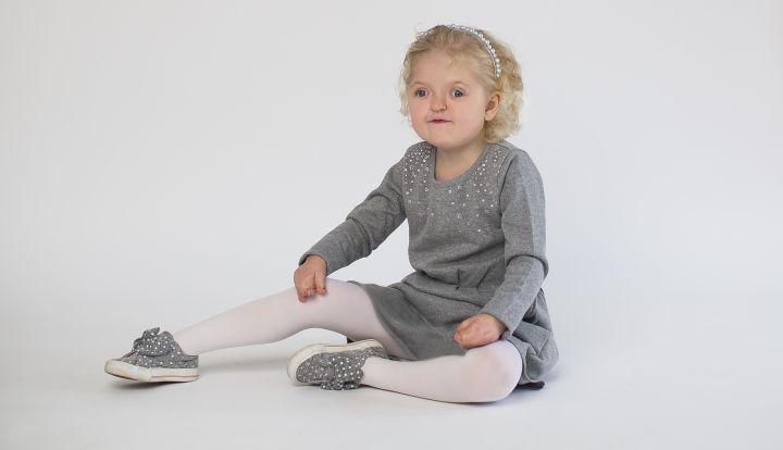 Dzeiwczynka z zespołem Aperta. Jest ubrana w szarą sukienkę i szare butki oraz w białe rajstopy